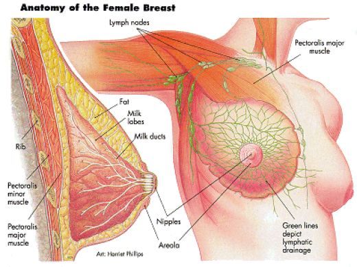 breast-cancer-diagram